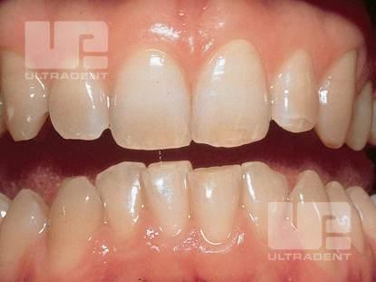 1_Opalescence-PF-Clinical-Before_Dr.RobertNixon