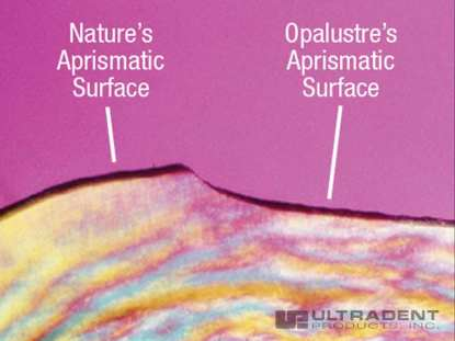 Chemical and mechanical abrasion produce a natural-looking surface. (Photo courtesy of Dr. Renato Herman Sundfeld)