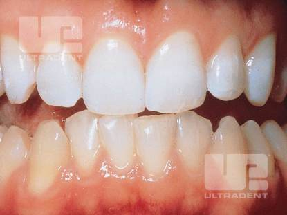 2_Opalescence-PF-Clinical-After_Dr.RobertNixon