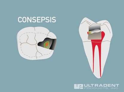 2_Ultra-Blend-plus-Pulp-Capping-Procedure