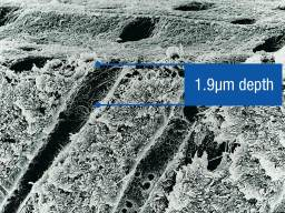 2_Ultra-Etch-Clincial-SEM-1.9um-depth