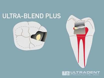 3_Ultra-Blend-plus-Pulp-Capping-Procedure