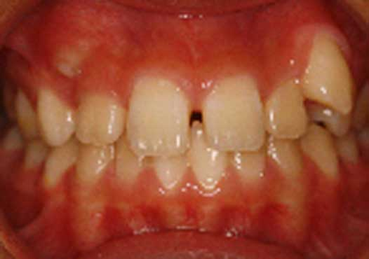 11 year old Asian female. Bilateral dental Class 2 div 2 malocclusion Class 1 Skeletal pattern Mild lip incompetence Severe upper arch crowding, mild lower arch crowding Excess overbite Normal facial esthetics