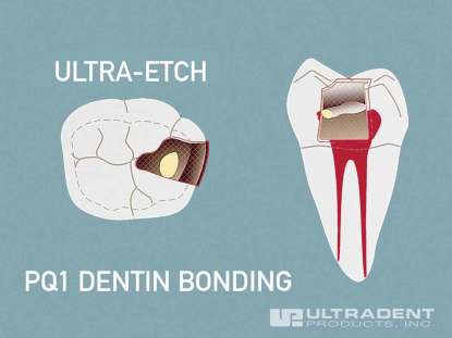 4_Ultra-Blend-plus-Pulp-Capping-Procedure