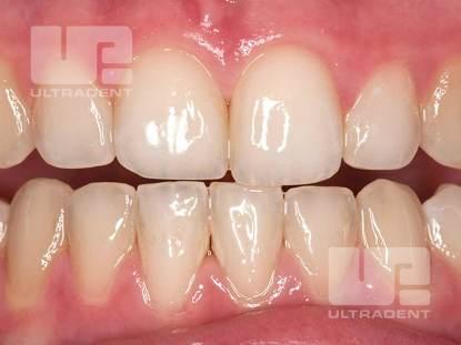 7_Opalescence-Boost-Clinical-Before-Amanda-Lundberg