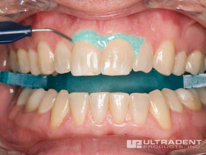 Opalescence-Boost-Procedure_Step-4