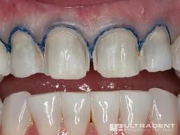 Step-3_Rinse-Dry_Ultrapak