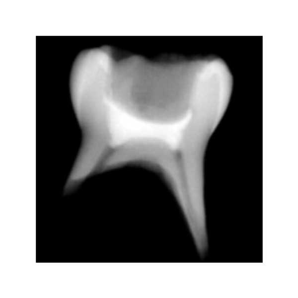 TheraCalPT_Radiograph_Nudent