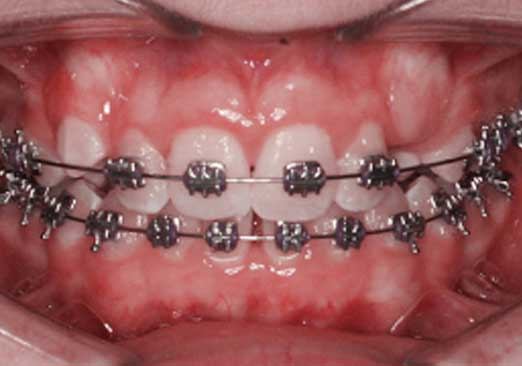 Orthodontic alignment with low-profile Synergy 018 brackets U/L 2112 and 022 Synergy-R brackets U/L 345. Note the lower incisor spacing due significant arch expansion from RMO's orthonol wires.