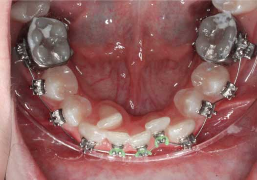 """Final result with incredible aesthetics and stability. A bonded """"fixed gold-chain"""" retainer is placed canine to canine."""