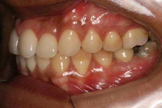 Photo taken one year and 8 months post treatment. Results are stable. There has also been an implant and ceramic crown placed on the lower left first molar.