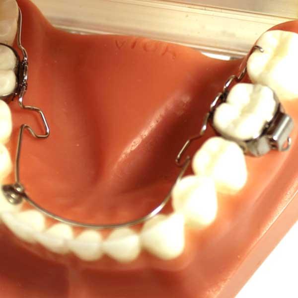 3D®-Lingual-Arch3
