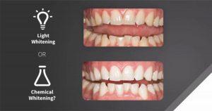 ฟอกสีฟันด้วยแสง