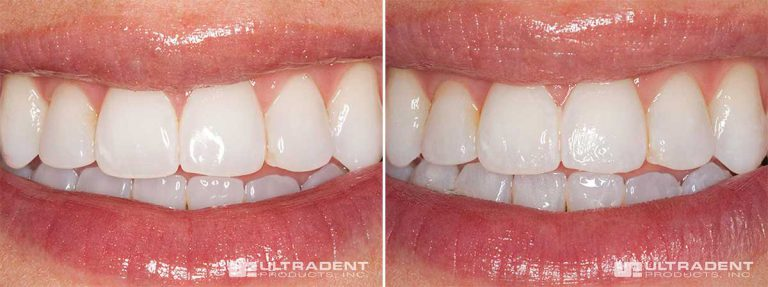 These before-and-after photos of an Enamelast fluoride varnish application show the smooth texture and nearly invisible appearance.