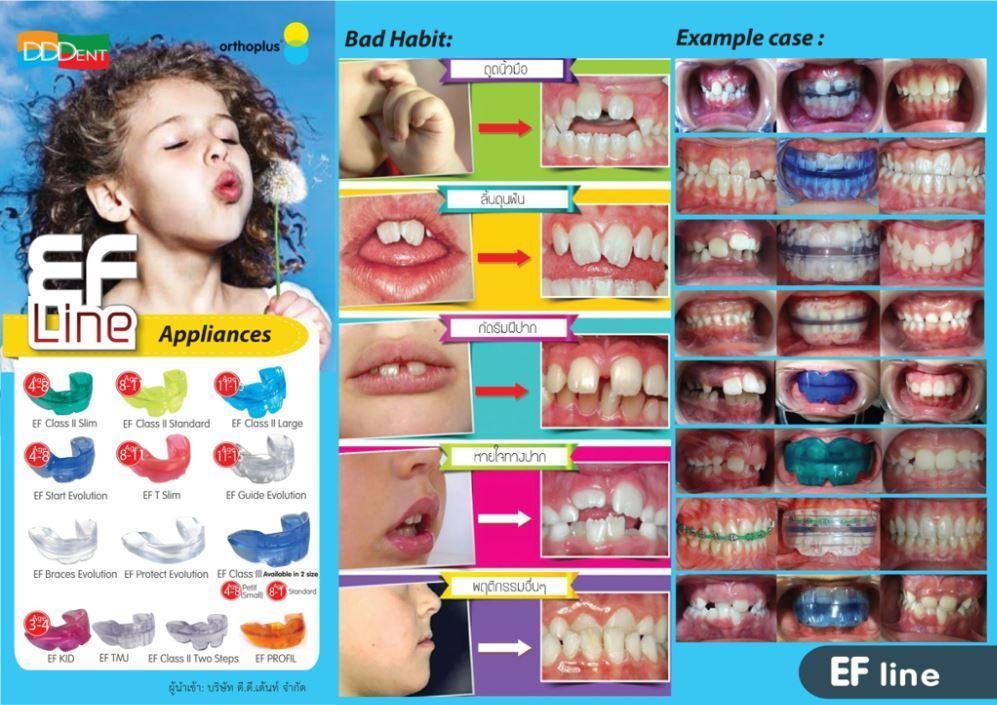 EF LINE เครื่องมือจัดฟันในเด็กเล็ก