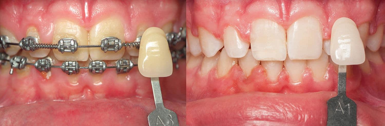 ฟอกสีฟันด้วย Opalescence Go