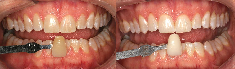 ฟอกสีฟันด้วย Opalescence Go 15% 10 วัน