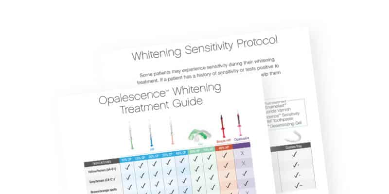 Opalescence Whitening Treatment Guide
