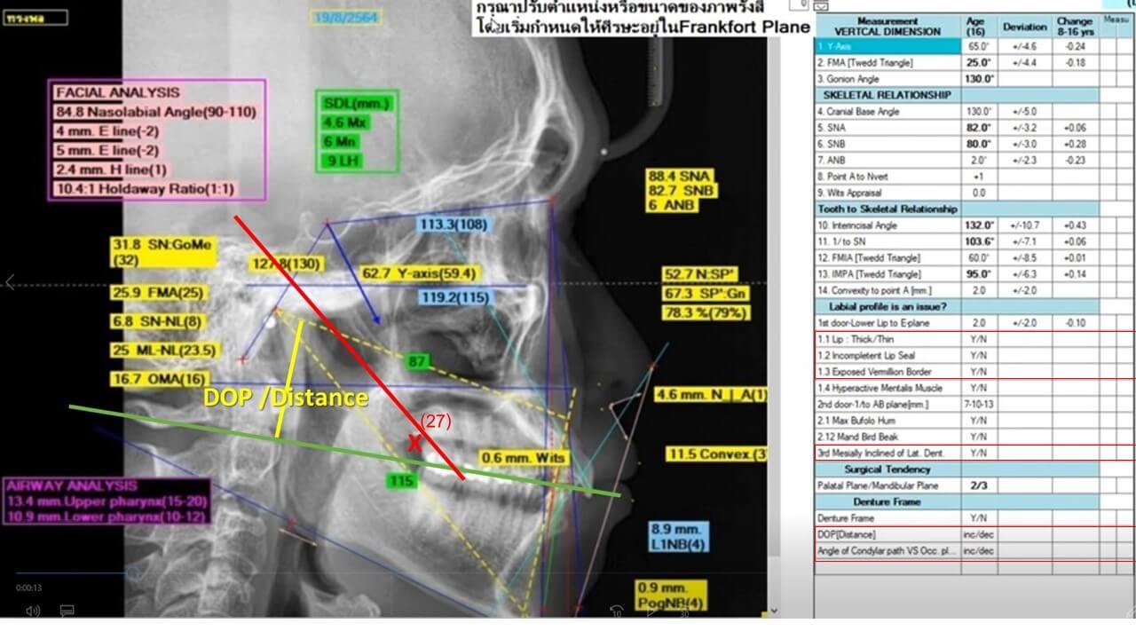 T&P Cephalometric Program Version 3